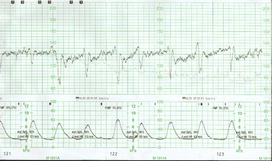 Cardiotocography